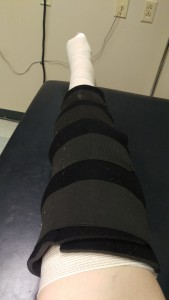 bandaging and knee immobilizer for my broken leg